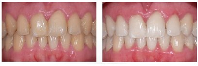 Teeth Whitening - Before & After