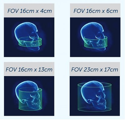 V17 Has The Largest Range of Field-Of-View